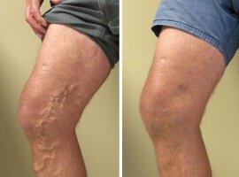 Before and after the use Varicobooster 4